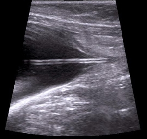 Image of catheter in cat with FLUTD